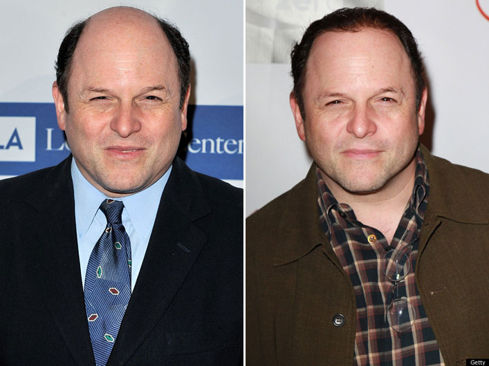 jason alexander before and after