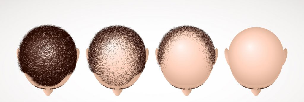 male type hair loss