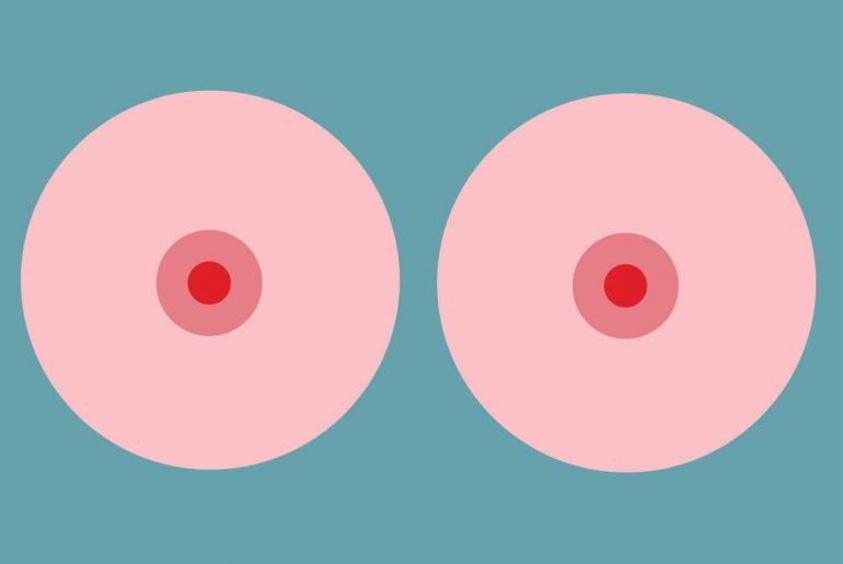 breast implant lift cost